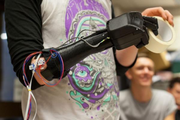 Open Bionics